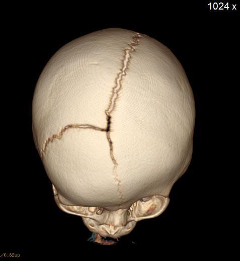 left coronal CT