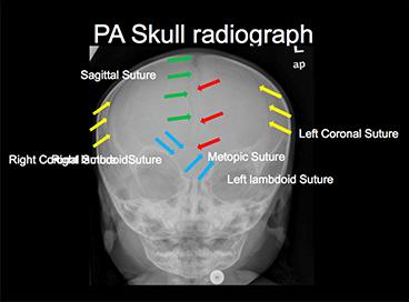 pa-skull-radiograph